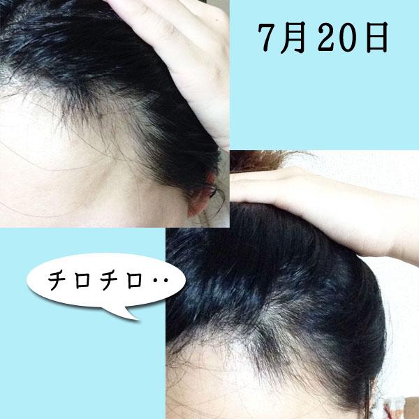 円形脱毛症完治