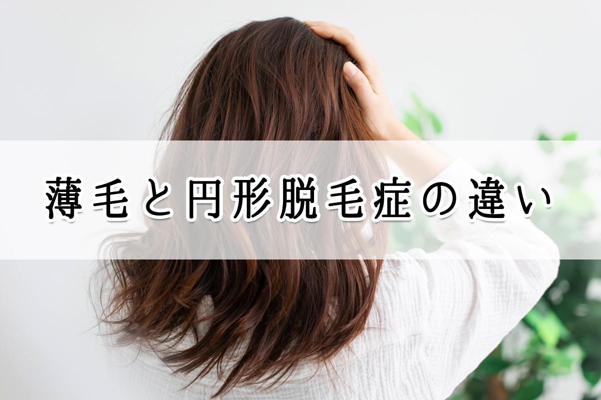 薄毛と円形脱毛症の違い